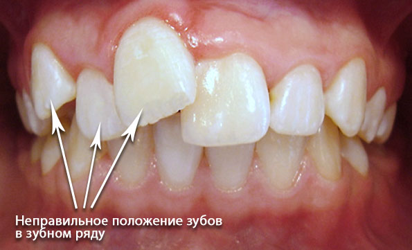 orthodontics-02