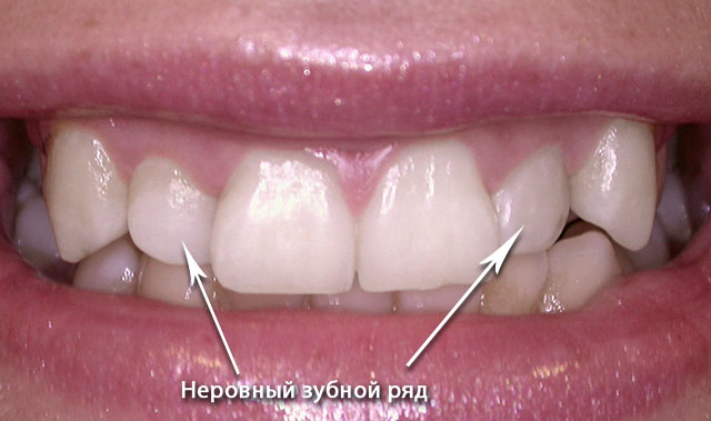 orthodontics-03