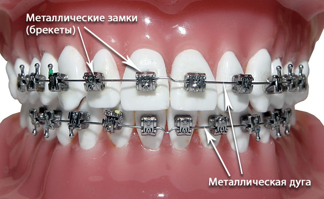 orthodontics-07