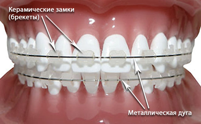 orthodontics-08