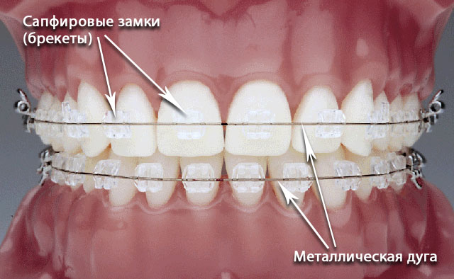 orthodontics-09
