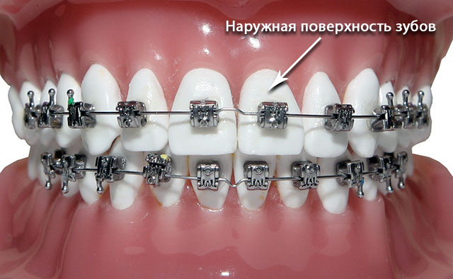 orthodontics-10