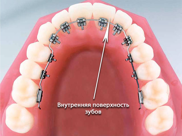 orthodontics-11