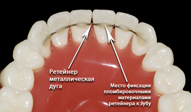orthodontics-12