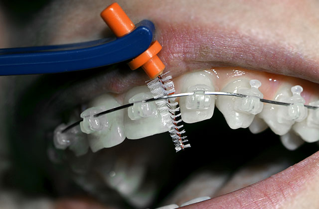 orthodontics-13