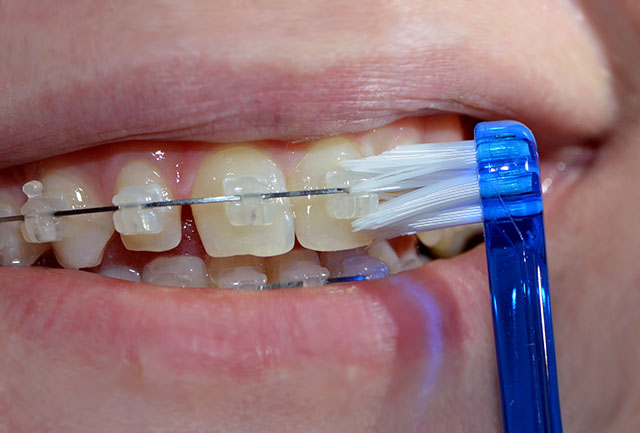 orthodontics-16