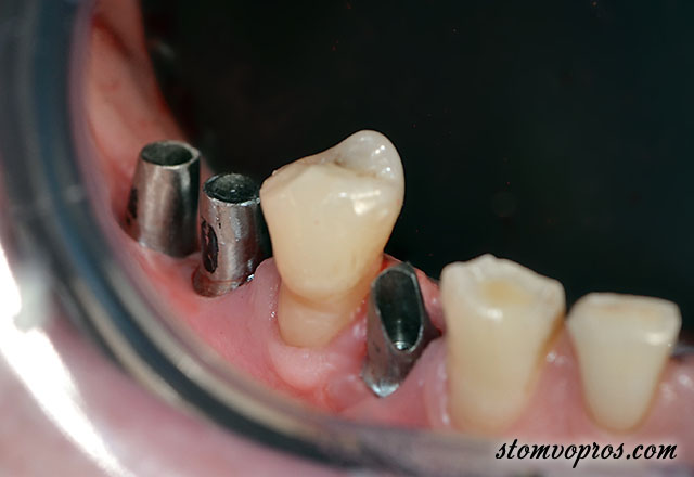 implant clinical case-02