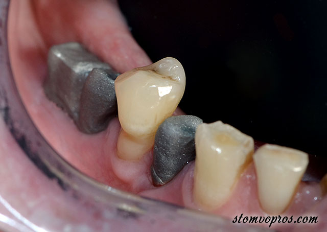 implant clinical case-03