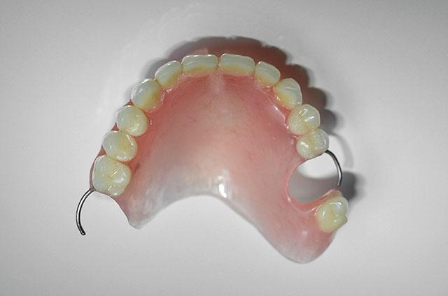 Какой съемный зубной протез лучший